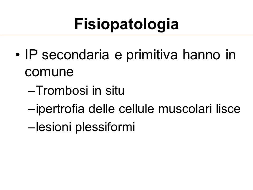 IP secondaria e primitiva hanno in comune –Trombosi in situ –ipertrofia delle cellule muscolari lisce –lesioni plessiformi Fisiopatologia