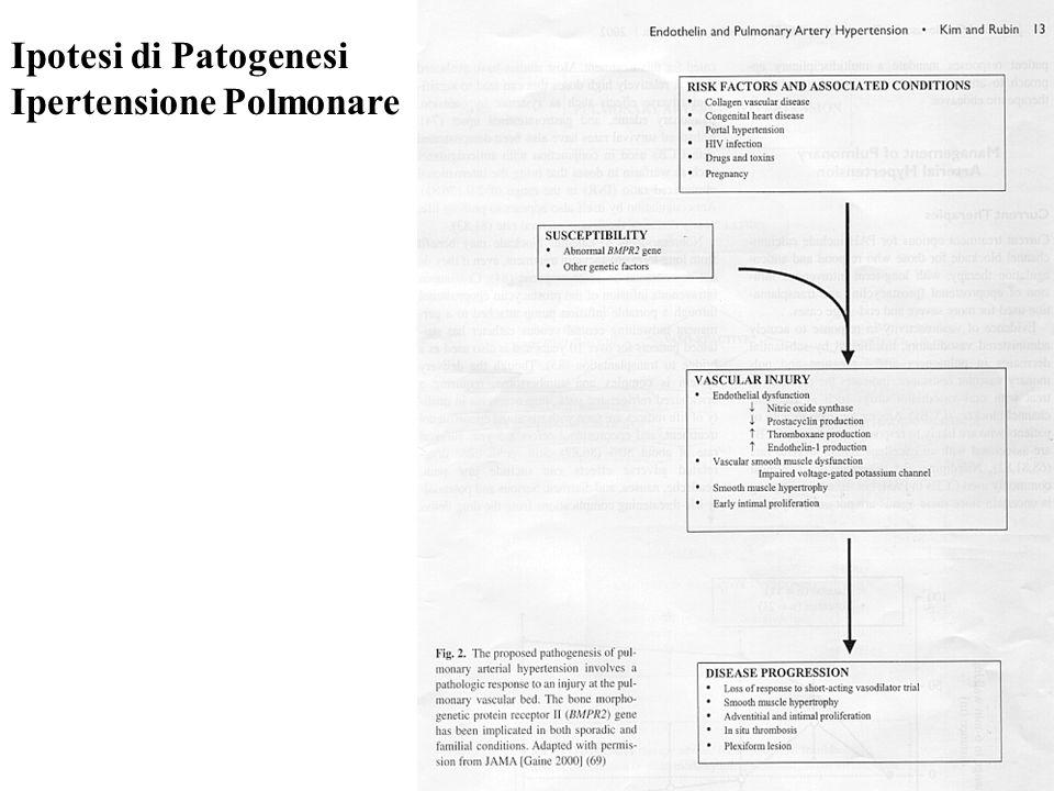 Ipotesi di Patogenesi Ipertensione Polmonare