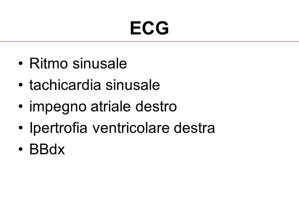 ECG Ritmo sinusale tachicardia sinusale impegno atriale destro Ipertrofia ventricolare destra BBdx