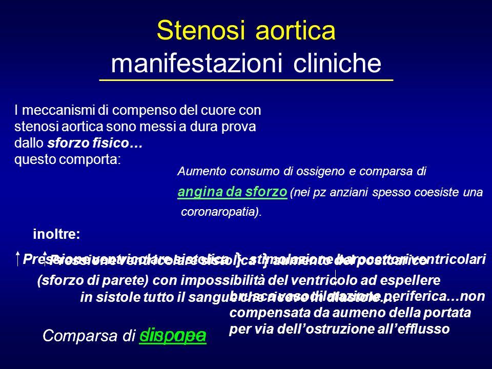 Stenosi aortica manifestazioni cliniche I meccanismi di compenso del cuore con stenosi aortica sono messi a dura prova dallo sforzo fisico… questo com