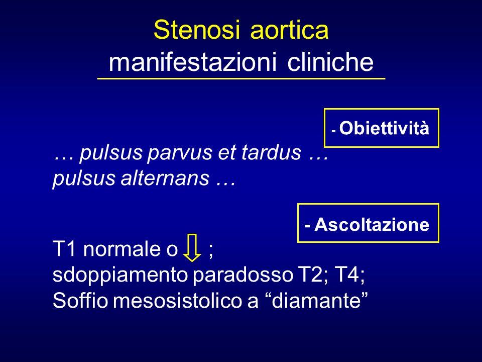 Stenosi aortica manifestazioni cliniche - Obiettività … pulsus parvus et tardus … pulsus alternans … - Ascoltazione T1 normale o ; sdoppiamento parado