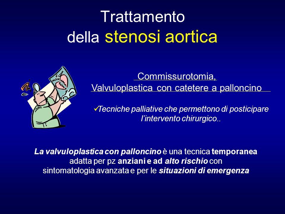 Trattamento della stenosi aortica Commissurotomia, Valvuloplastica con catetere a palloncino La valvuloplastica con palloncino è una tecnica temporane