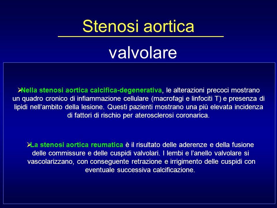 Correlazione tra fattori di rischio per patologia aterosclerotica e sviluppo di stenosi aortica Stewart et al.