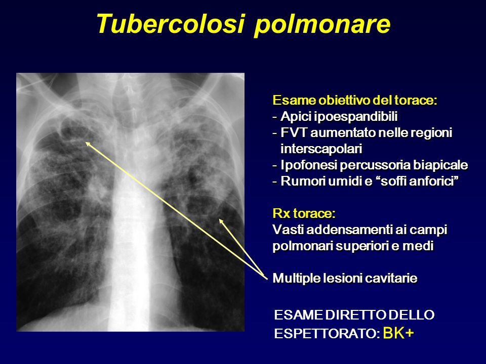 Tubercolosi polmonare Esame obiettivo del torace: - Apici ipoespandibili - FVT aumentato nelle regioni interscapolari - Ipofonesi percussoria biapical