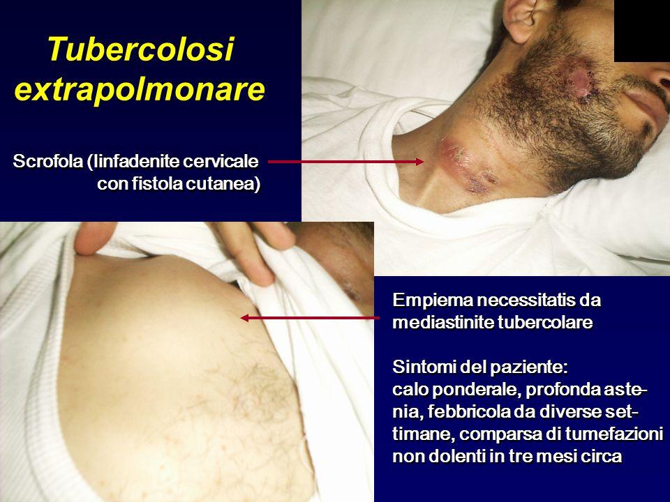 Tubercolosi extrapolmonare Scrofola (linfadenite cervicale con fistola cutanea) Scrofola (linfadenite cervicale con fistola cutanea) Empiema necessita