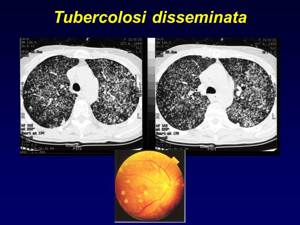 Tubercolosi disseminata