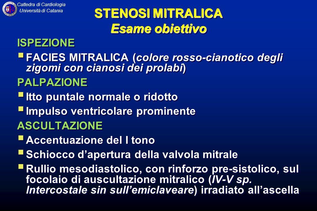 Cattedra di Cardiologia Università di Catania STENOSI MITRALICA Esame obiettivo ISPEZIONE FACIES MITRALICA (colore rosso-cianotico degli zigomi con ci