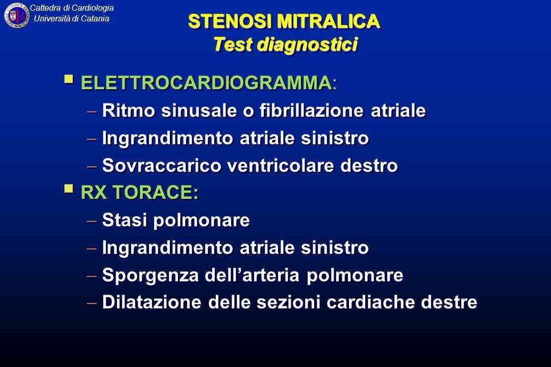 Cattedra di Cardiologia Università di Catania STENOSI MITRALICA Test diagnostici ELETTROCARDIOGRAMMA: Ritmo sinusale o fibrillazione atriale Ingrandim