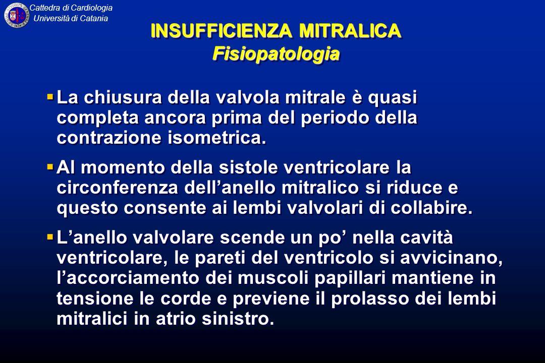 Cattedra di Cardiologia Università di Catania La chiusura della valvola mitrale è quasi completa ancora prima del periodo della contrazione isometrica