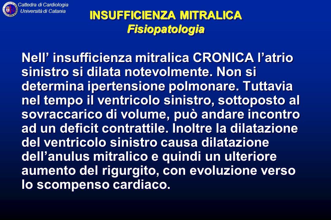 Cattedra di Cardiologia Università di Catania Nell insufficienza mitralica CRONICA latrio sinistro si dilata notevolmente. Non si determina ipertensio