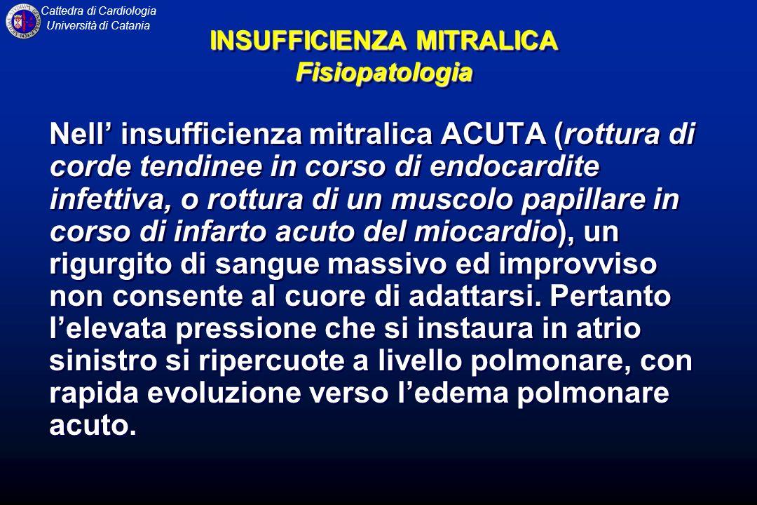 Cattedra di Cardiologia Università di Catania Nell insufficienza mitralica ACUTA (rottura di corde tendinee in corso di endocardite infettiva, o rottu