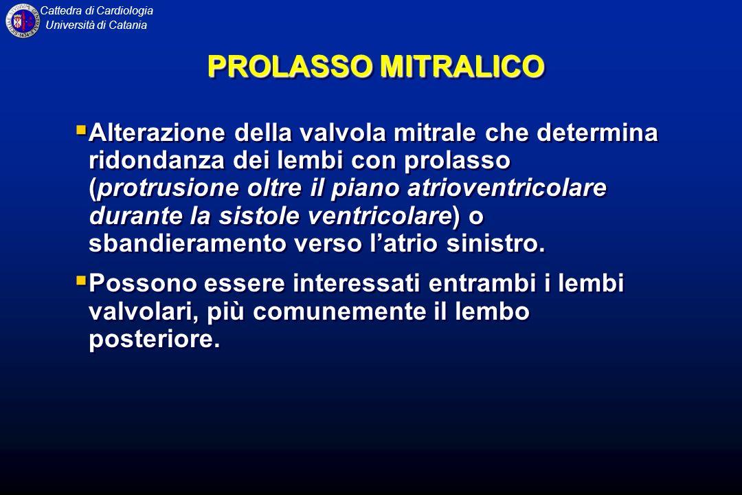 Cattedra di Cardiologia Università di Catania PROLASSO MITRALICO Alterazione della valvola mitrale che determina ridondanza dei lembi con prolasso (pr