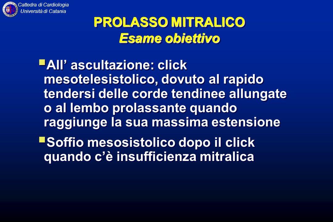 Cattedra di Cardiologia Università di Catania PROLASSO MITRALICO Esame obiettivo All ascultazione: click mesotelesistolico, dovuto al rapido tendersi