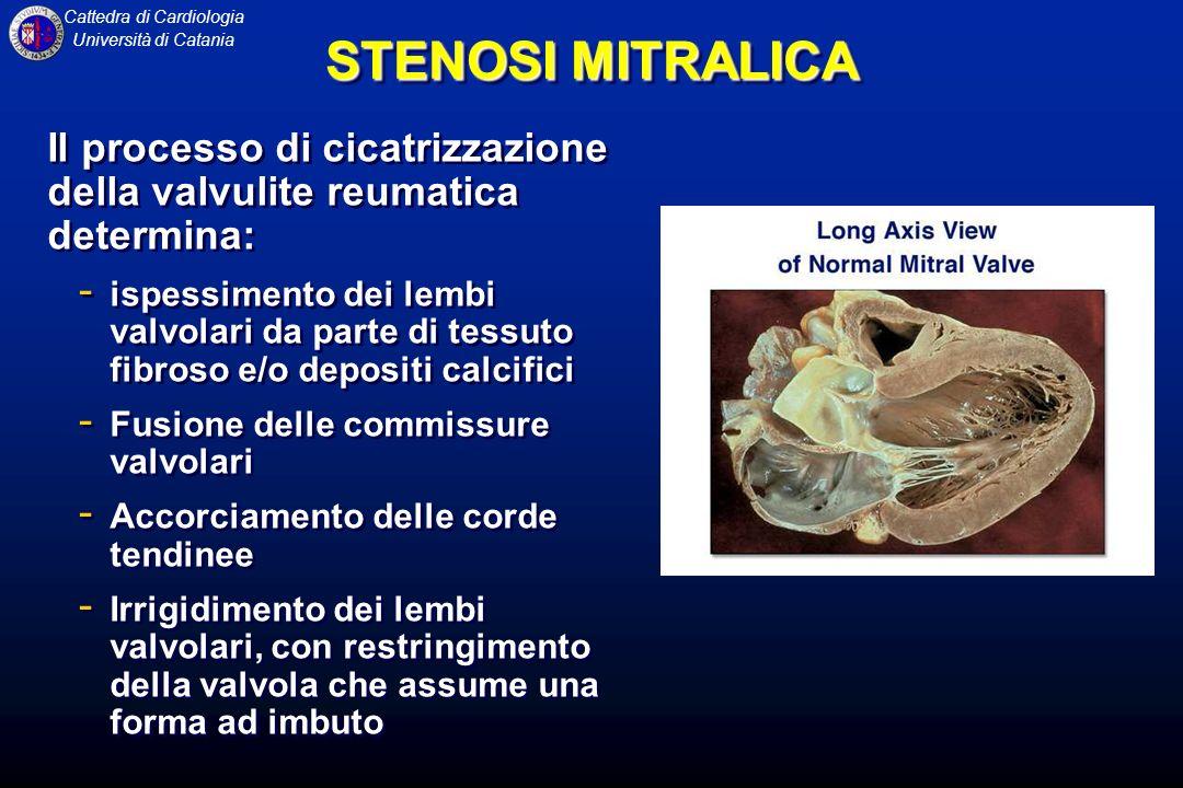 Cattedra di Cardiologia Università di Catania STENOSI MITRALICA Il processo di cicatrizzazione della valvulite reumatica determina: - ispessimento dei