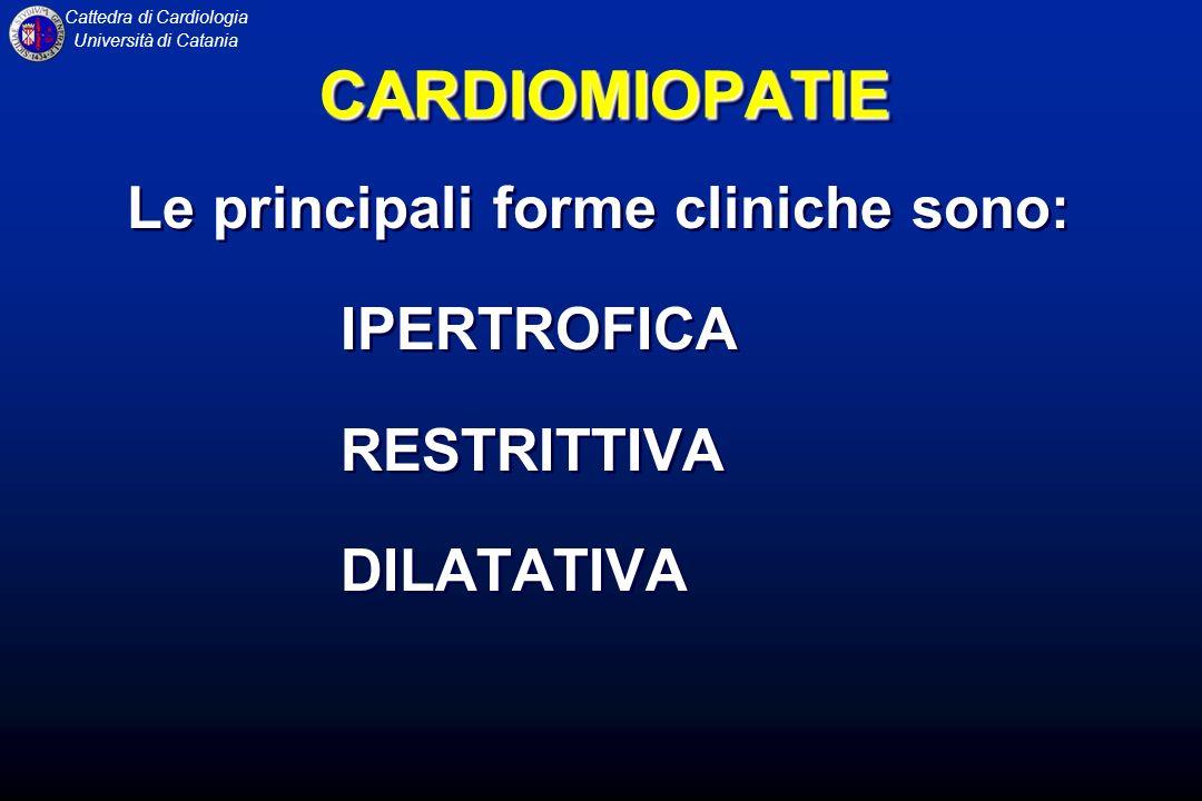 Cattedra di Cardiologia Università di Catania CARDIOMIOPATIA DILATATIVA FISIOPATOLOGIA La dislocazione dei muscoli papillari, dovuta alla dilatazione del ventricolo sinistro, determina uninsufficienza mitralica secondaria.