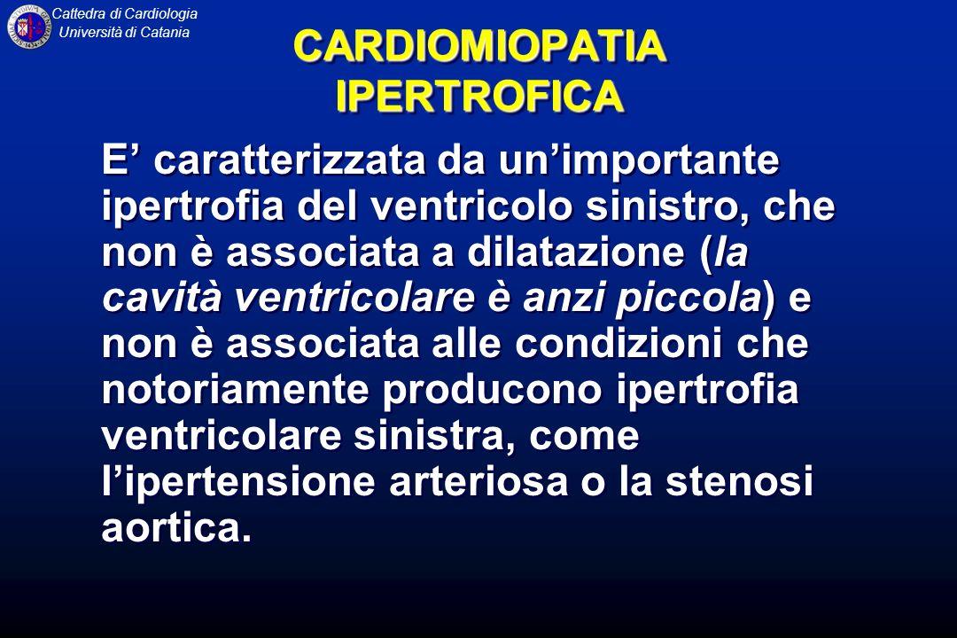 Cattedra di Cardiologia Università di Catania CARDIOMIOPATIA DILATATIVA ESAMI STRUMENTALI ECG HOLTER documenta spesso aritmie ventricolari, dallextrasistolia monorfa alla tachicardia ventricolare sostenuta ECOCARDIOGRAMMA fornisce la maggior parte degli elementi utili alla diagnosi.