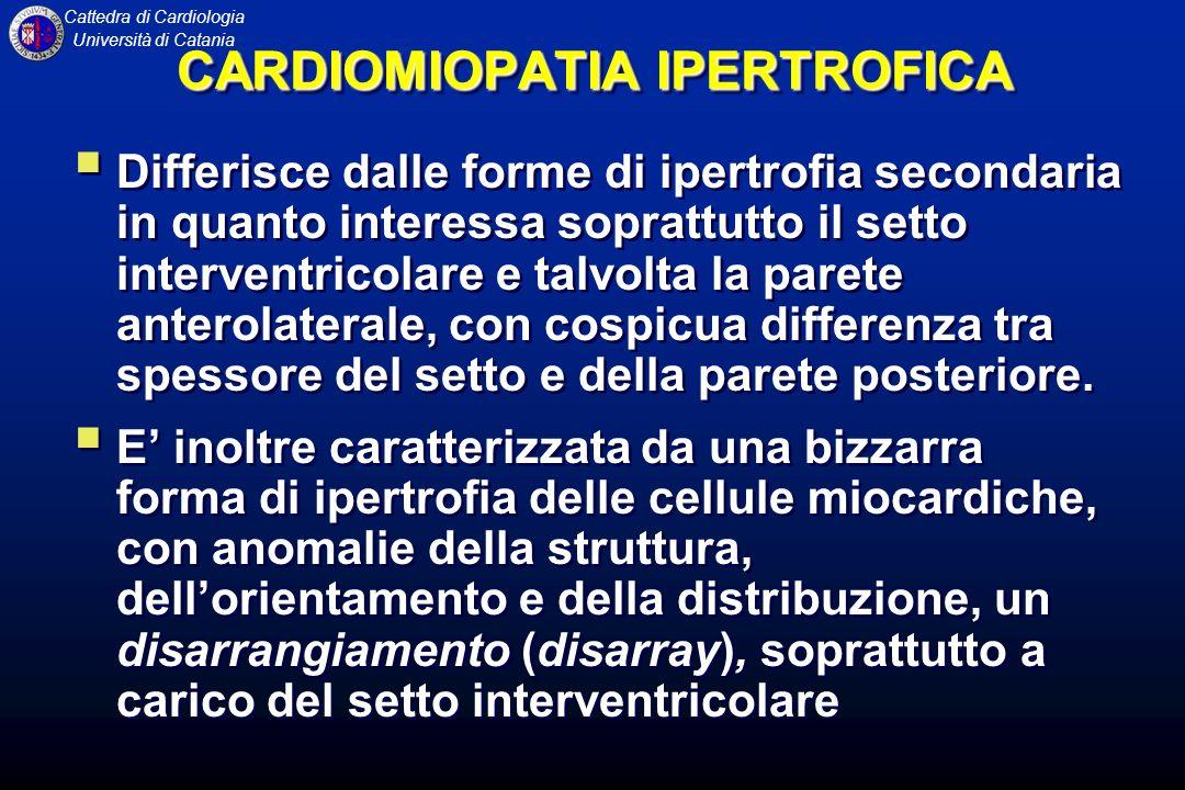 Cattedra di Cardiologia Università di Catania ECO di un paziente con CMD, in proiezione parasternale, che mostra marcata dilatazione dellatrio e del ventricolo sn