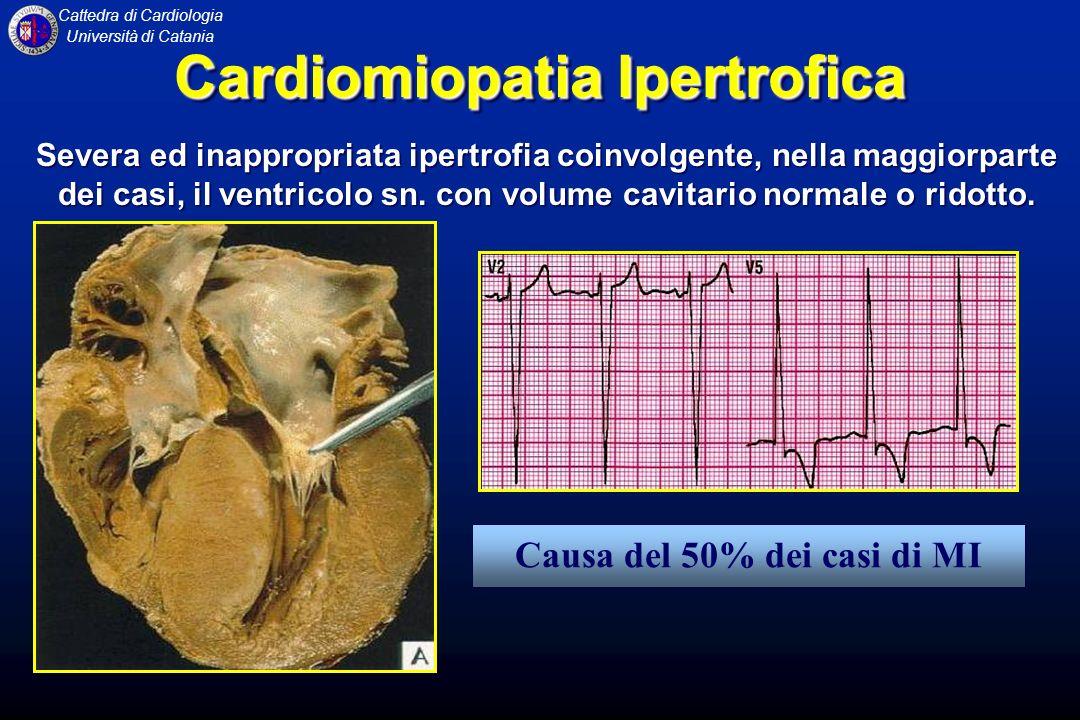 Cattedra di Cardiologia Università di Catania CARDIOMIOPATIA DILATATIVA ANATOMIA PATOLOGICA Il cuore è globalmente ingrandito e le cavità sono dilatate, con pareti inizialmente di spessore normale, ma che, con il passare del tempo, si assottigliano progressivamente Gli apparati valvolari e le coronarie sono anatomicamente normali.