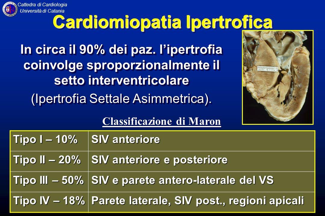 Cattedra di Cardiologia Università di Catania CARDIOMIOPATIA IPERTROFICA Accentuata contrattilità ventricolare, con una frazione deiezione del ventricolo sinistro superiore al normale.