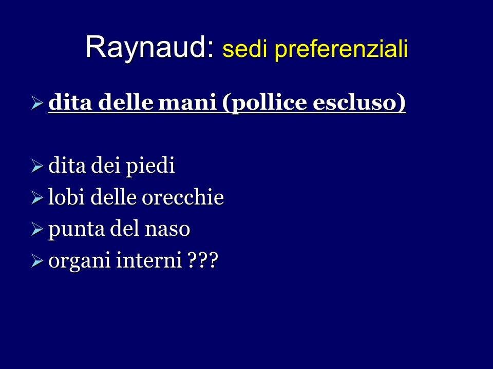 Raynaud: sedi preferenziali dita delle mani (pollice escluso) dita delle mani (pollice escluso) dita dei piedi dita dei piedi lobi delle orecchie lobi