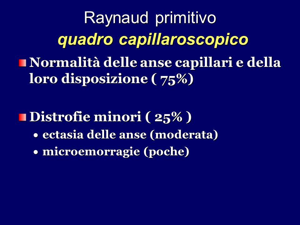 Raynaud primitivo quadro capillaroscopico Normalità delle anse capillari e della loro disposizione ( 75%) Distrofie minori ( 25% ) ectasia delle anse