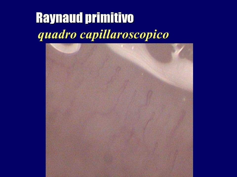 Raynaud primitivo quadro capillaroscopico