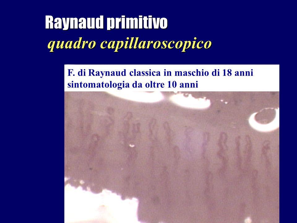 Raynaud primitivo quadro capillaroscopico F. di Raynaud classica in maschio di 18 anni sintomatologia da oltre 10 anni