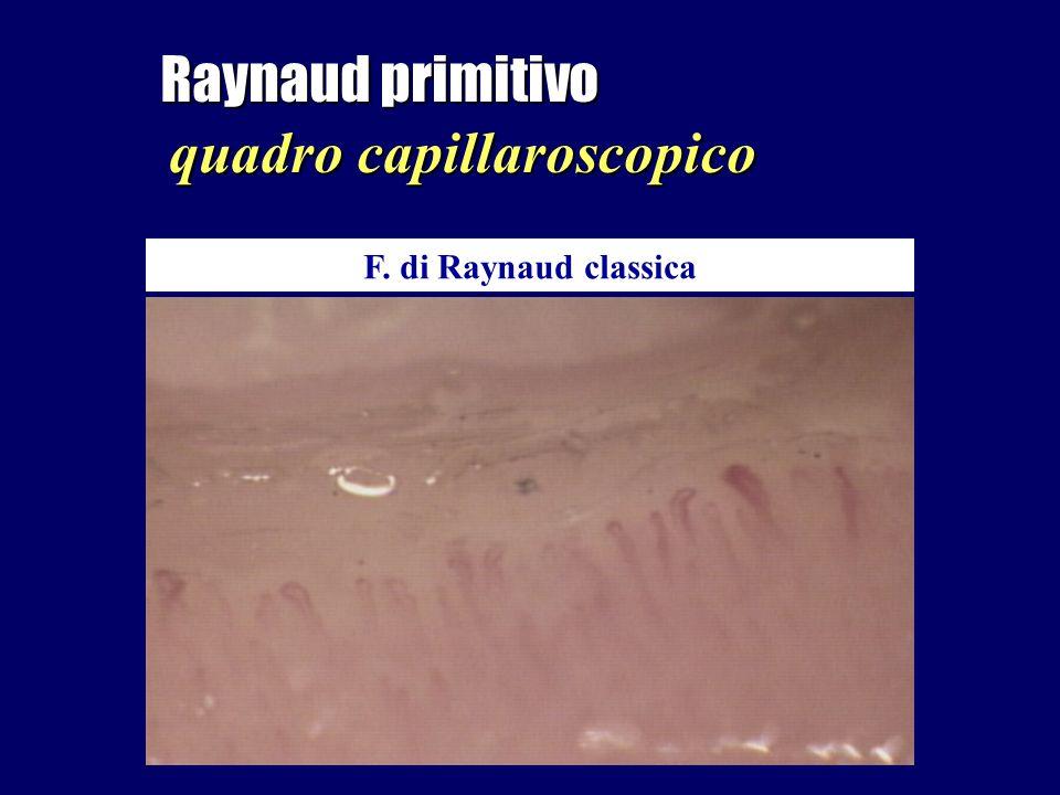 Raynaud primitivo quadro capillaroscopico F. di Raynaud classica