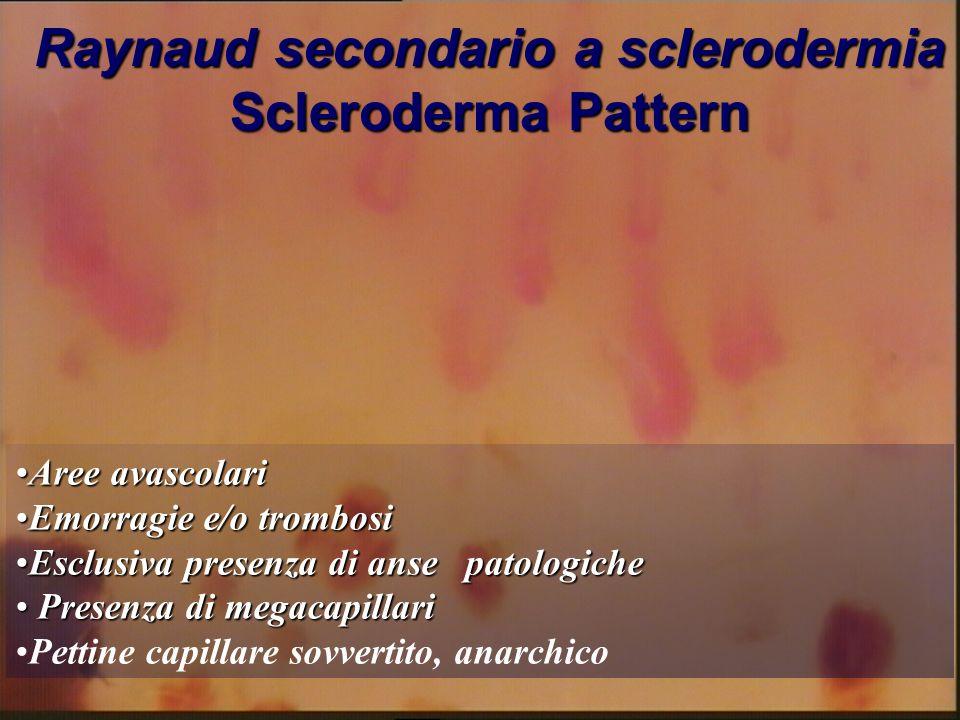 Raynaud secondario a sclerodermia Scleroderma Pattern Aree avascolariAree avascolari Emorragie e/o trombosiEmorragie e/o trombosi Esclusiva presenza d
