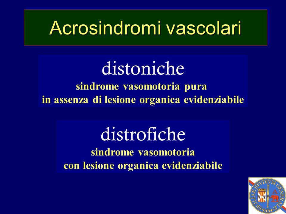 Acrosindromi vascolari distoniche sindrome vasomotoria pura in assenza di lesione organica evidenziabile distrofiche sindrome vasomotoria con lesione