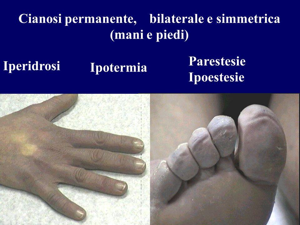 Cianosi permanente, bilaterale e simmetrica (mani e piedi) Ipotermia Iperidrosi Parestesie Ipoestesie