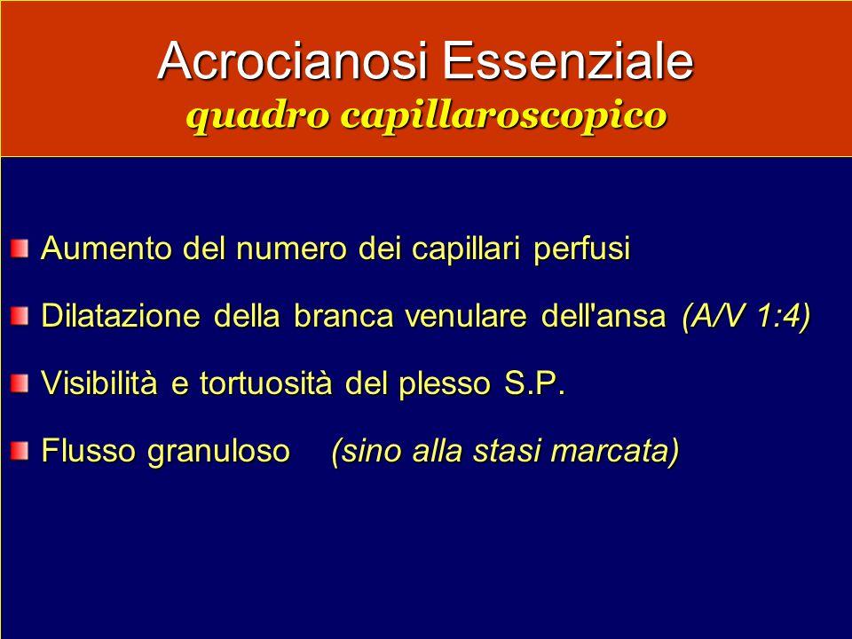 Acrocianosi Essenziale quadro capillaroscopico Aumento del numero dei capillari perfusi Dilatazione della branca venulare dell'ansa (A/V 1:4) Visibili