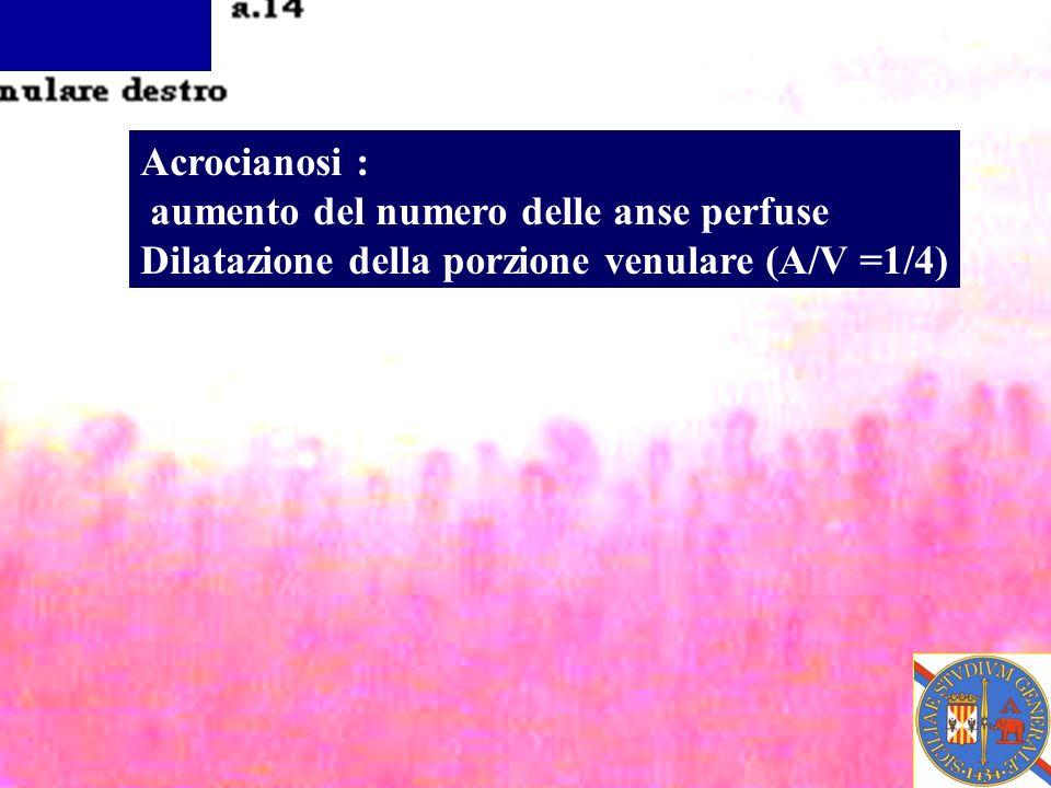 Acrocianosi : aumento del numero delle anse perfuse Dilatazione della porzione venulare (A/V =1/4)