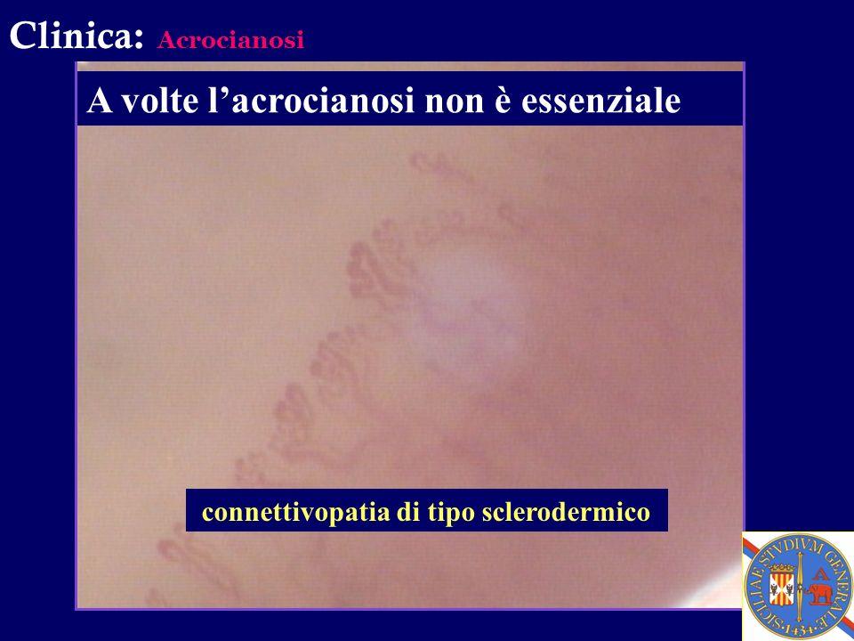 Clinica: Acrocianosi A volte lacrocianosi non è essenziale connettivopatia di tipo sclerodermico