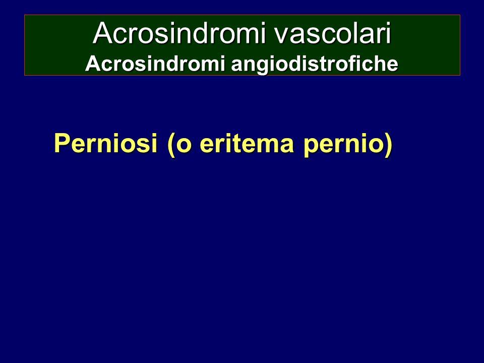 Acrosindromi vascolari Acrosindromi angiodistrofiche Perniosi (o eritema pernio)