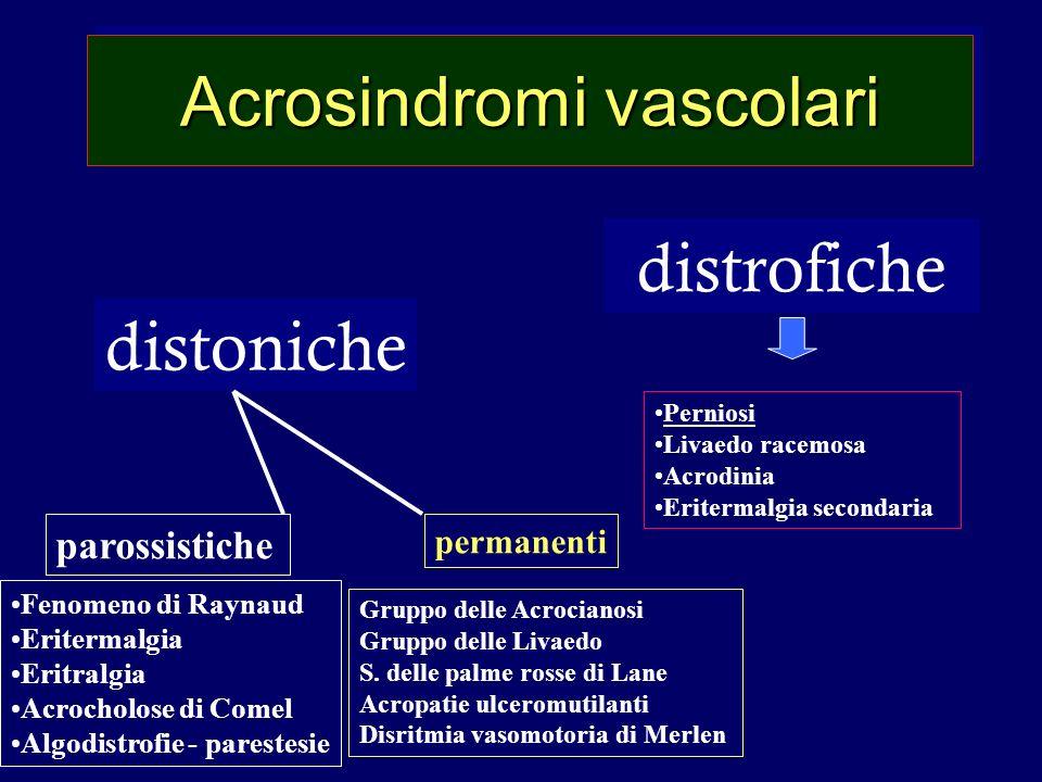 Acrosindromi vascolari distoniche distrofiche parossistiche permanenti Perniosi Livaedo racemosa Acrodinia Eritermalgia secondaria Fenomeno di Raynaud