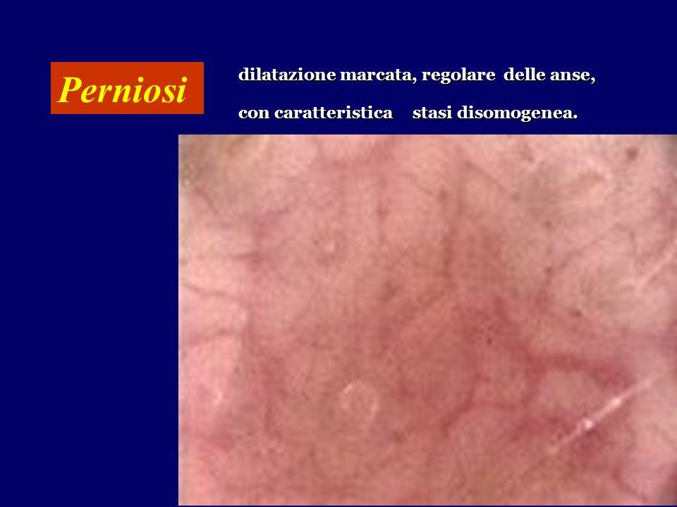 Perniosi dilatazione marcata, regolare delle anse, con caratteristica stasi disomogenea.