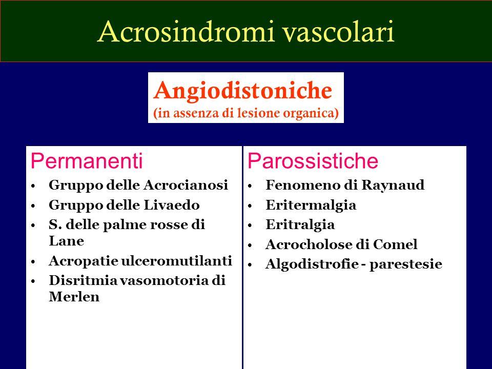 Acrosindromi vascolari Permanenti Gruppo delle Acrocianosi Gruppo delle Livaedo S. delle palme rosse di Lane Acropatie ulceromutilanti Disritmia vasom