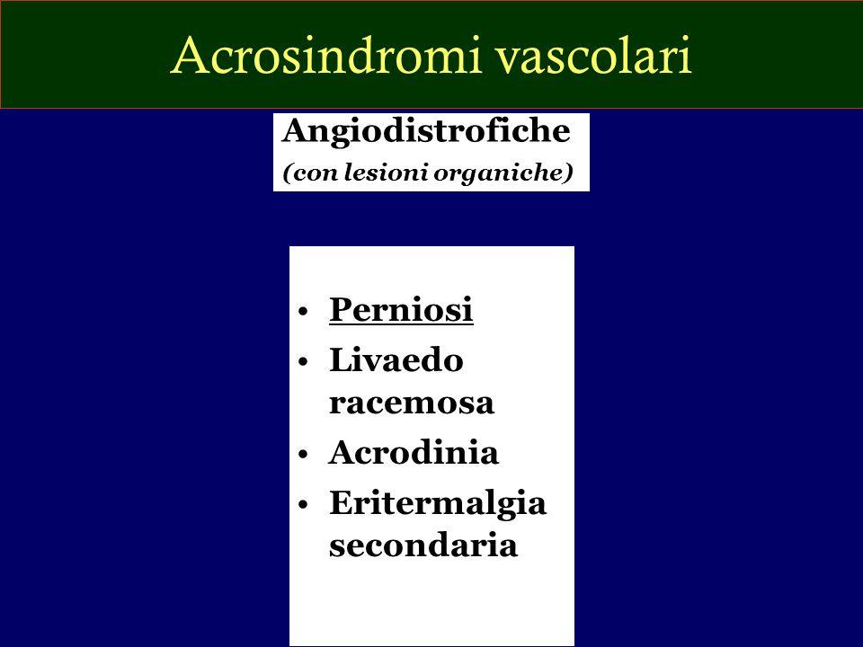 Acrosindromi vascolari Perniosi Livaedo racemosa Acrodinia Eritermalgia secondaria Angiodistrofiche (con lesioni organiche)