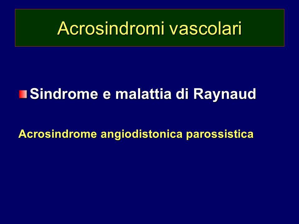 Acrosindromi vascolari Sindrome e malattia di Raynaud Acrosindrome angiodistonica parossistica