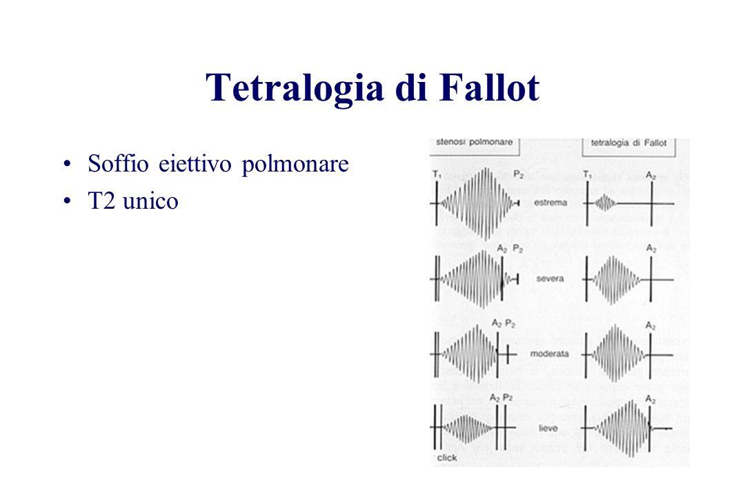 Tetralogia di Fallot Soffio eiettivo polmonare T2 unico