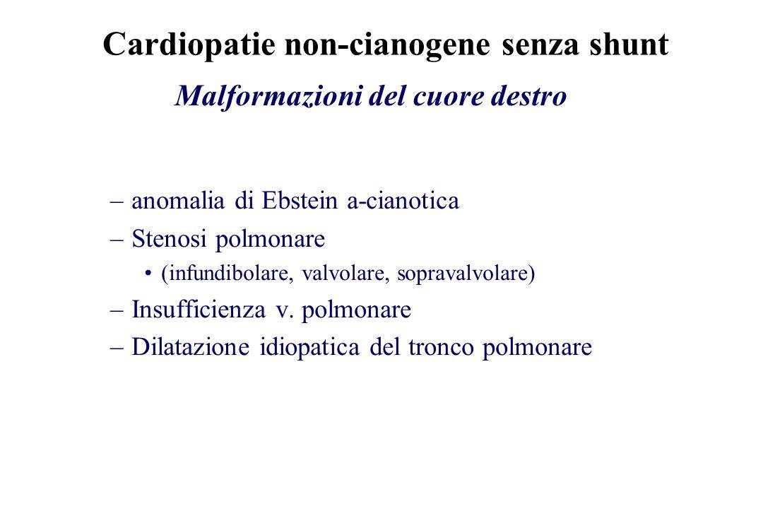 –anomalia di Ebstein a-cianotica –Stenosi polmonare (infundibolare, valvolare, sopravalvolare) –Insufficienza v. polmonare –Dilatazione idiopatica del