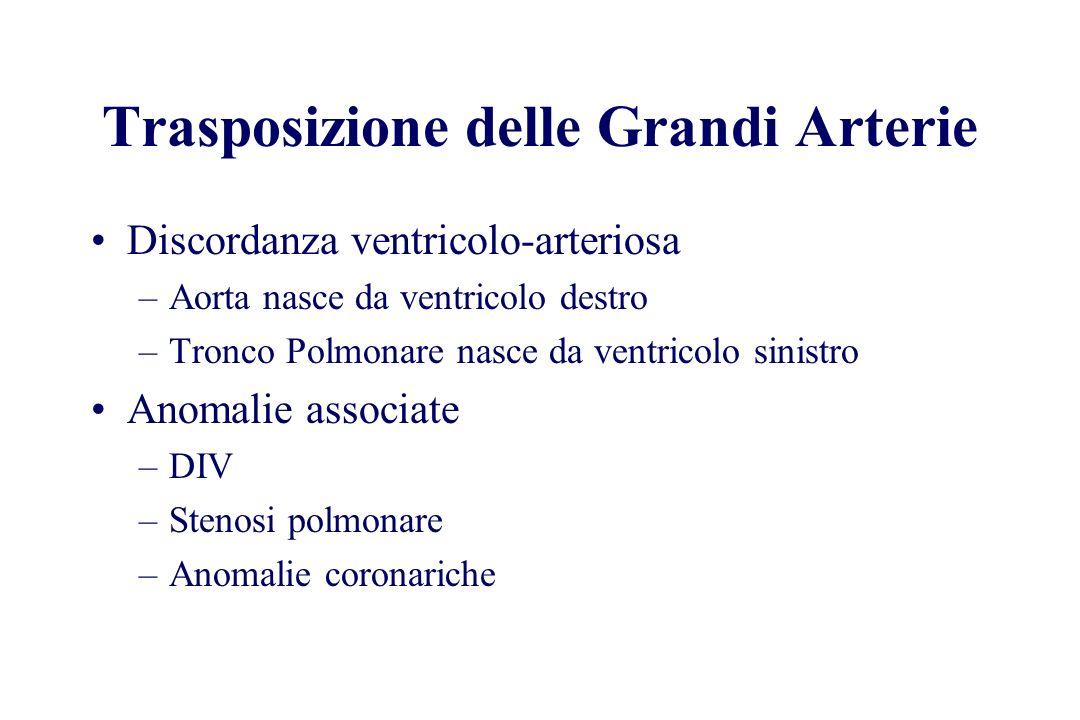 Trasposizione delle Grandi Arterie Discordanza ventricolo-arteriosa –Aorta nasce da ventricolo destro –Tronco Polmonare nasce da ventricolo sinistro A