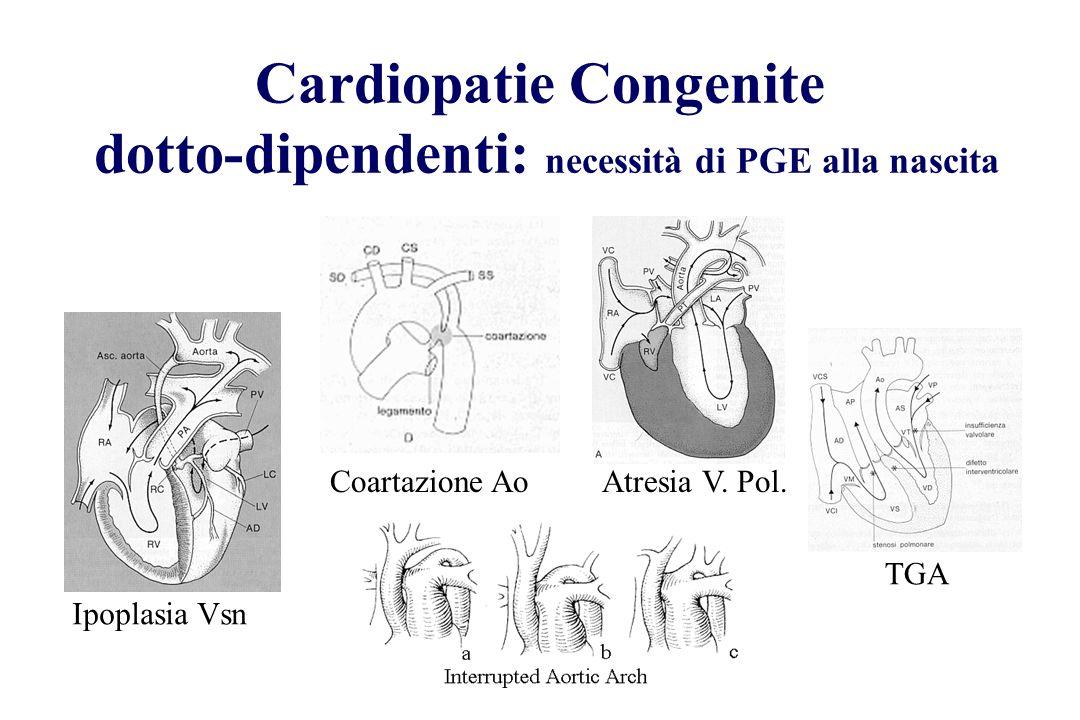 Cardiopatie Congenite dotto-dipendenti: necessità di PGE alla nascita Ipoplasia Vsn Coartazione AoAtresia V. Pol. TGA