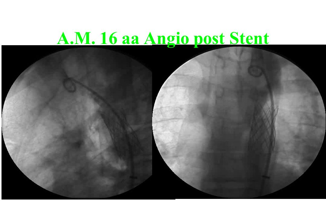 A.M. 16 aa Angio post Stent