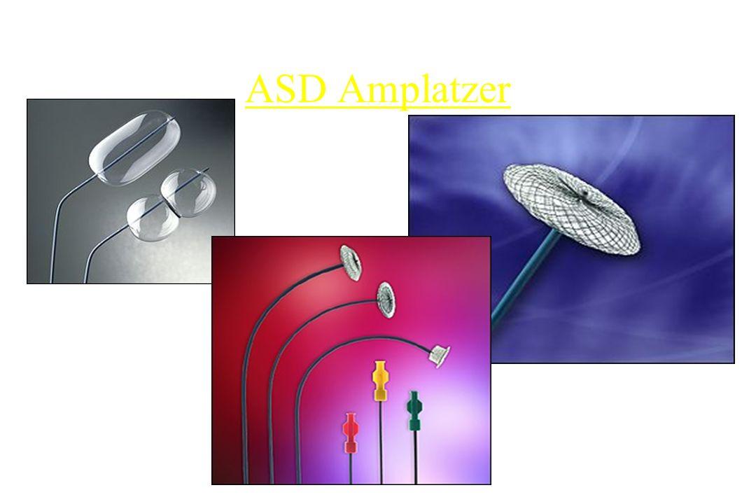 ASD Amplatzer