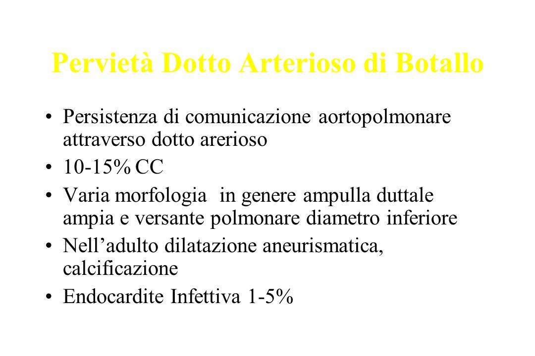 Pervietà Dotto Arterioso di Botallo Persistenza di comunicazione aortopolmonare attraverso dotto arerioso 10-15% CC Varia morfologia in genere ampulla