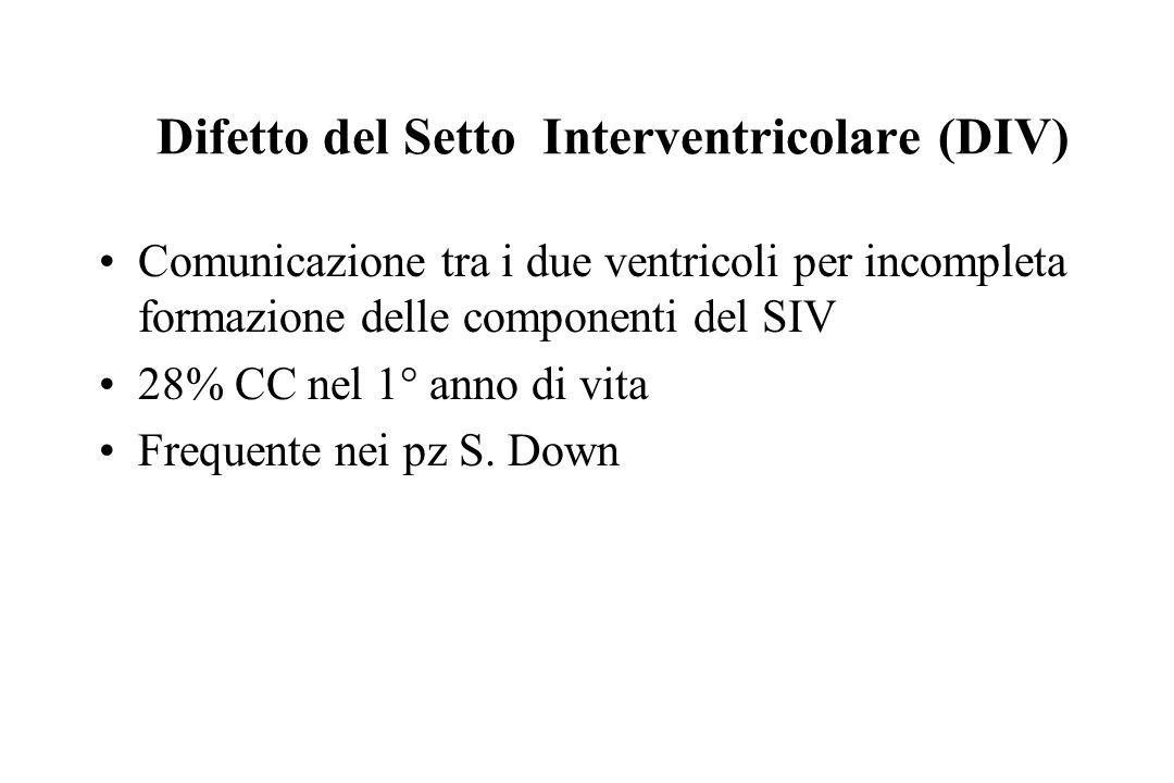 Difetto del Setto Interventricolare (DIV) Comunicazione tra i due ventricoli per incompleta formazione delle componenti del SIV 28% CC nel 1° anno di