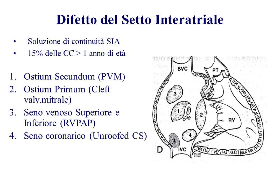 Difetto del Setto Interatriale Soluzione di continuità SIA 15% delle CC > 1 anno di età 3 1.Ostium Secundum (PVM) 2.Ostium Primum (Cleft valv.mitrale)