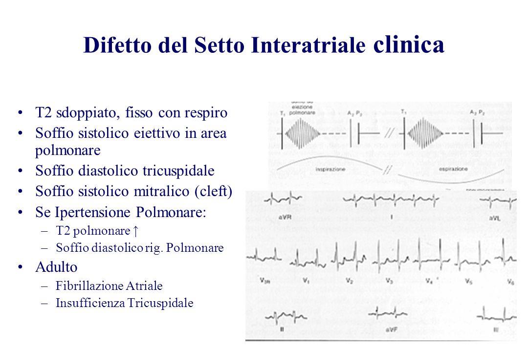 Difetto del Setto Interatriale clinica T2 sdoppiato, fisso con respiro Soffio sistolico eiettivo in area polmonare Soffio diastolico tricuspidale Soff